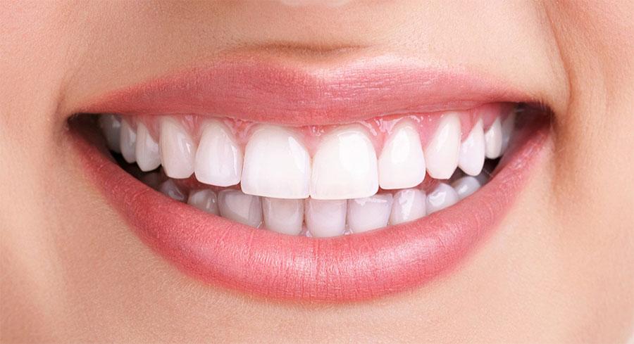 After-جرمگیری دندان