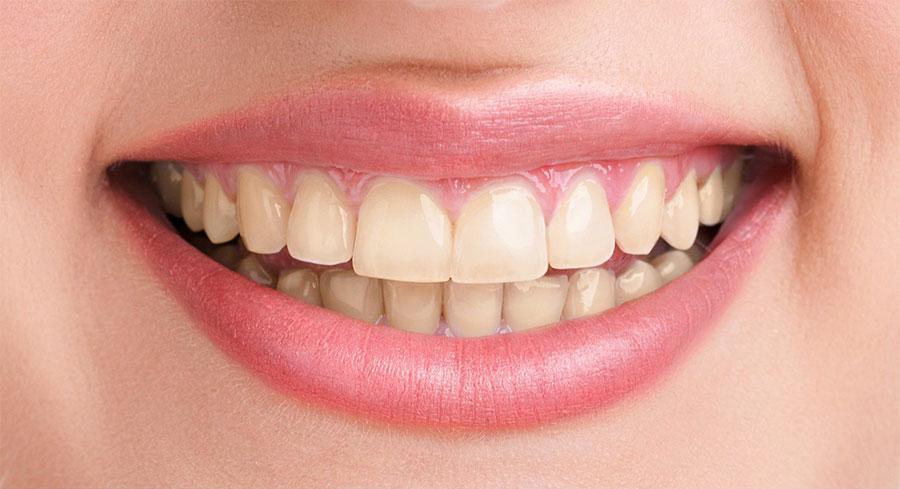 Before-جرمگیری دندان